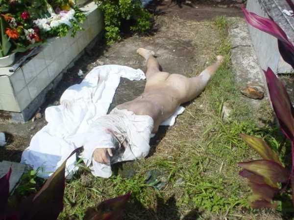 女尸尸检 女尸众目睽睽下被扒光验尸两小时